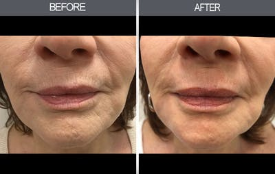 Chemical Peel Gallery - Patient 4452471 - Image 2