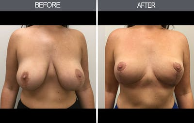 Breast Reduction Gallery - Patient 4452624 - Image 1