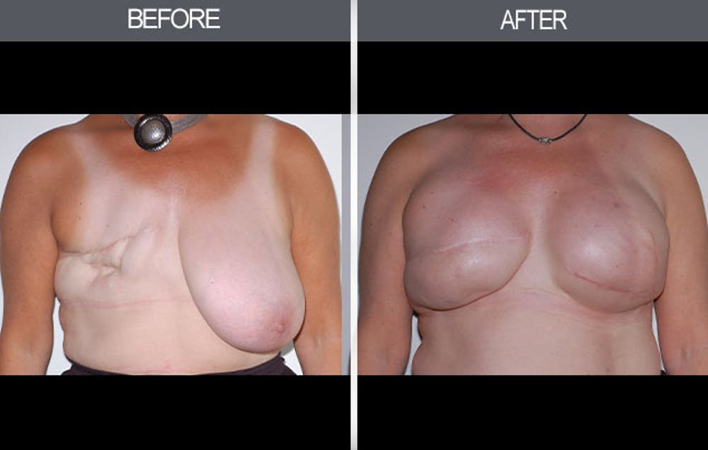 Breast Reconstruction Gallery - Patient 4452698 - Image 1