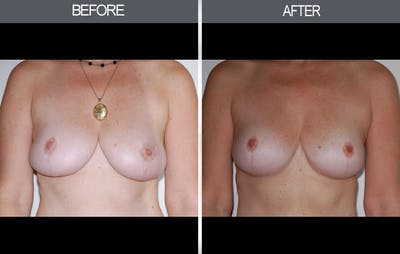 Breast Lift Gallery - Patient 4452820 - Image 1