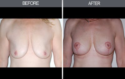 Breast Lift Gallery - Patient 4452821 - Image 1