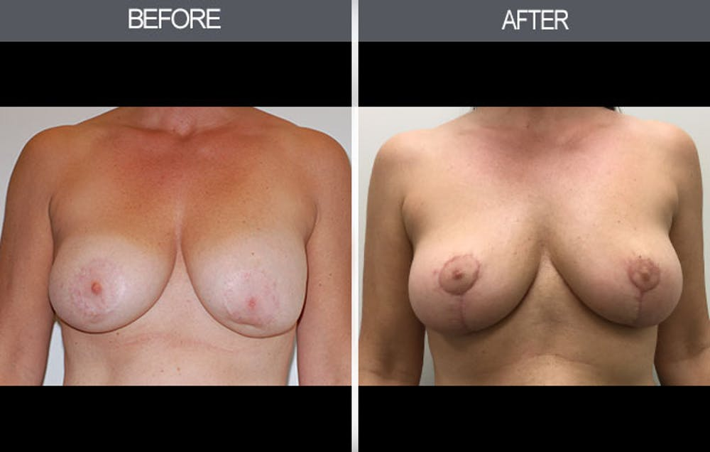 Breast Lift Gallery - Patient 4452822 - Image 1