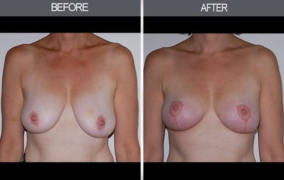 Breast Lift Gallery - Patient 4452823 - Image 1