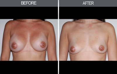 Breast Implant Removal Gallery - Patient 4452945 - Image 1