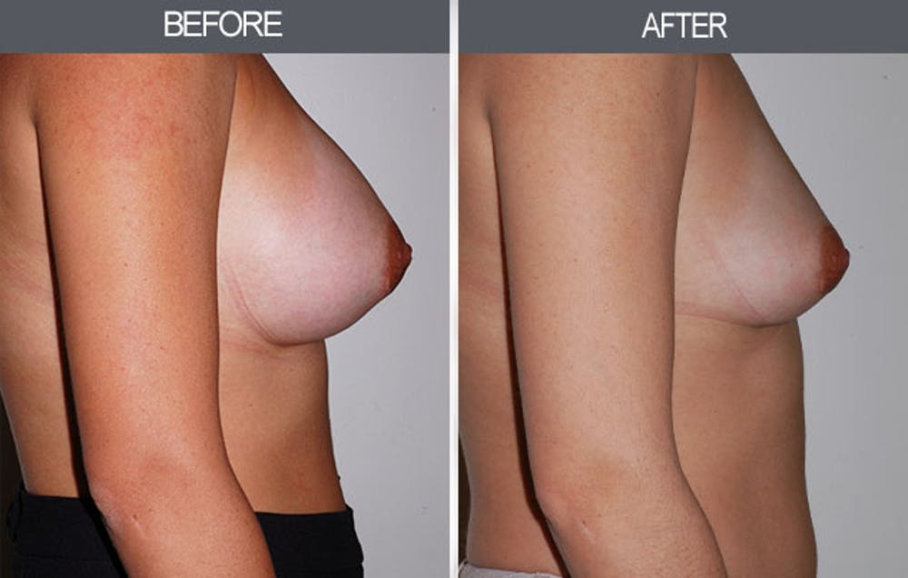 Breast Implant Removal Gallery - Patient 4452945 - Image 2