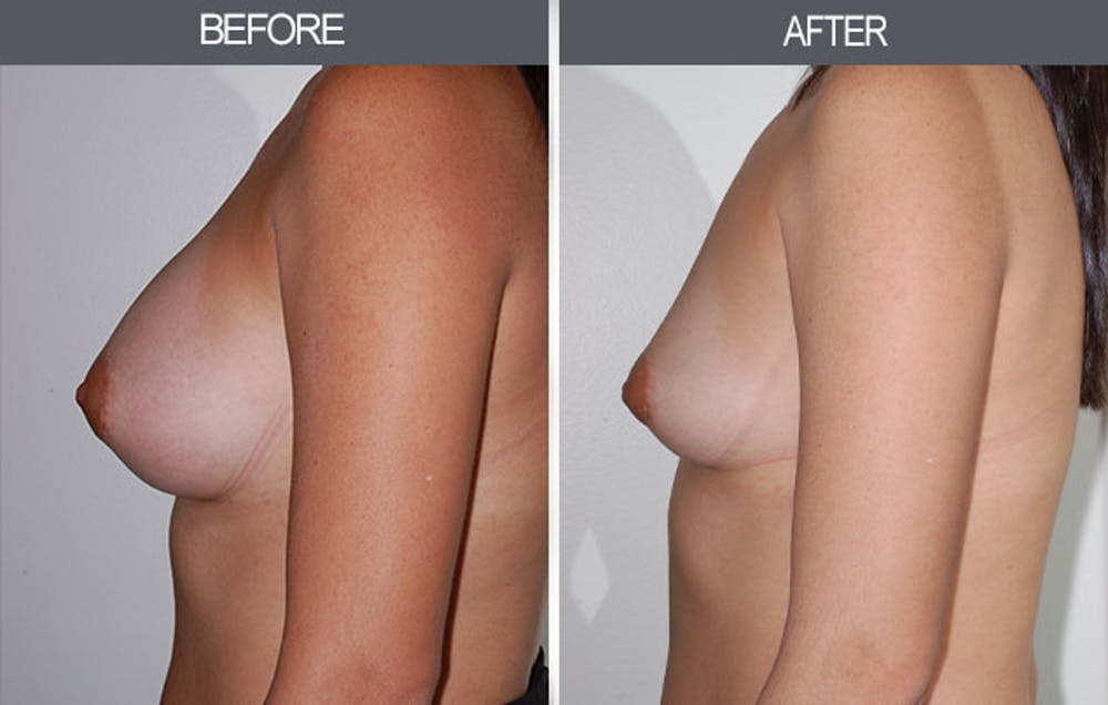 Breast Implant Removal Gallery - Patient 4452945 - Image 3