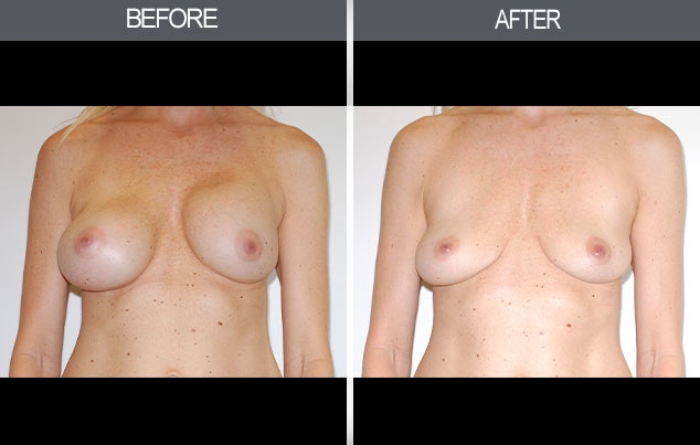 Breast Implant Removal Gallery - Patient 4452946 - Image 1