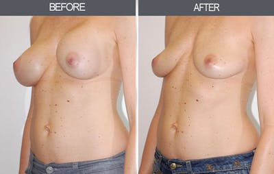 Breast Implant Removal Gallery - Patient 4452946 - Image 2