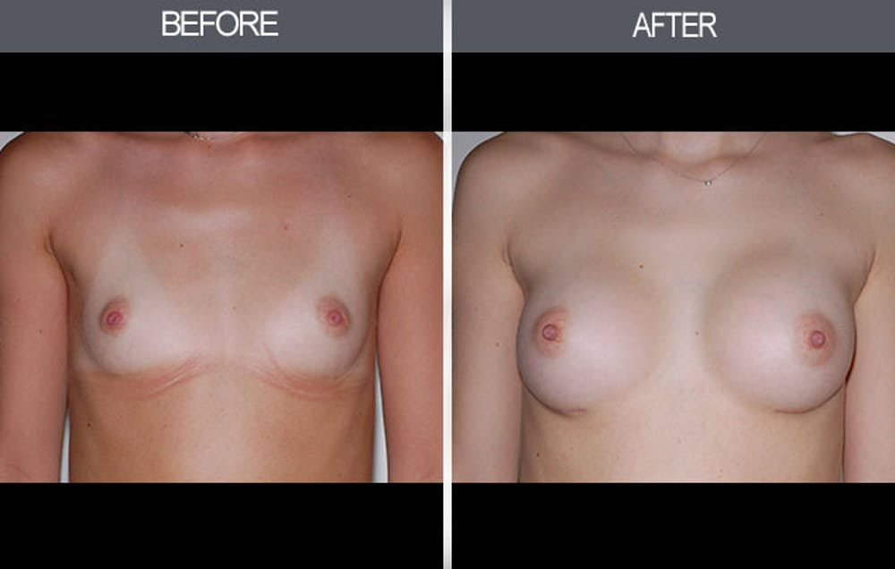 Breast Augmentation Gallery - Patient 4453064 - Image 1