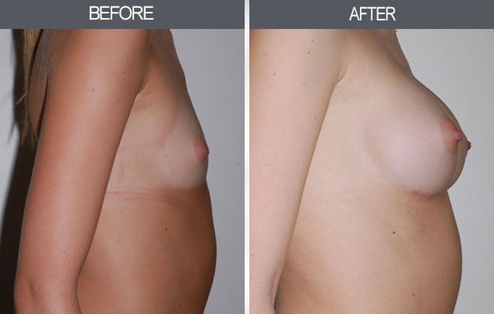 Breast Augmentation Gallery - Patient 4453064 - Image 2