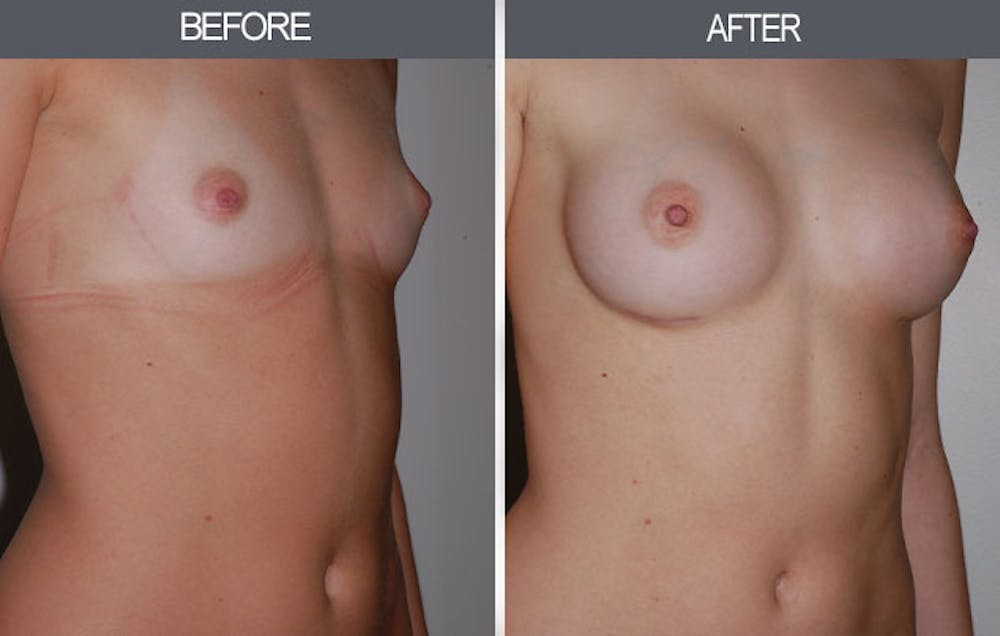 Breast Augmentation Gallery - Patient 4453064 - Image 3