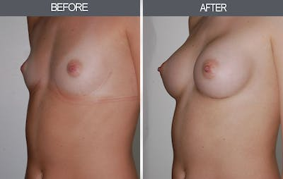 Breast Augmentation Gallery - Patient 4453064 - Image 4