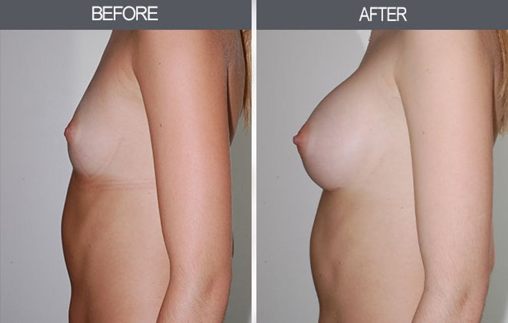 Breast Augmentation Gallery - Patient 4453064 - Image 5