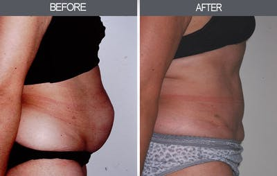 Tummy Tuck Gallery - Patient 4453576 - Image 1