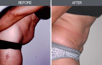 Tummy Tuck Gallery - Patient 4453576 - Image 2