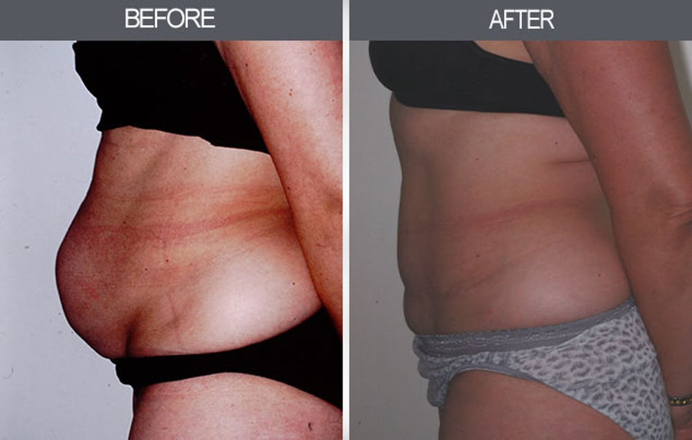 Tummy Tuck Gallery - Patient 4453576 - Image 3