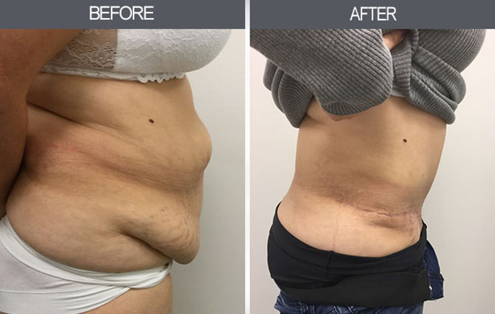 Tummy Tuck Gallery - Patient 4453577 - Image 1