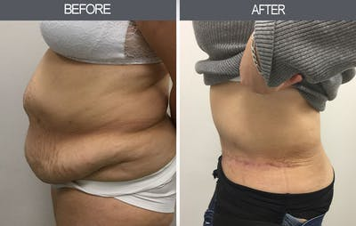 Tummy Tuck Gallery - Patient 4453577 - Image 2