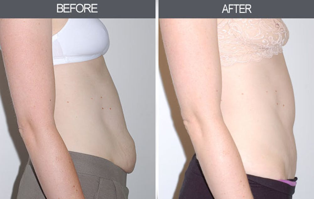 Tummy Tuck Gallery - Patient 4453578 - Image 1