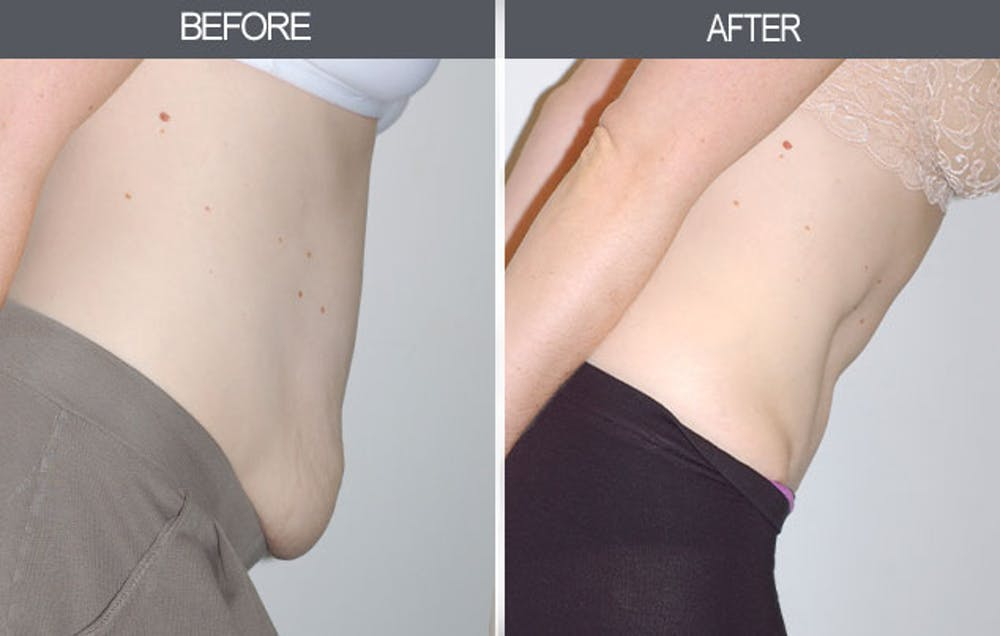 Tummy Tuck Gallery - Patient 4453578 - Image 2