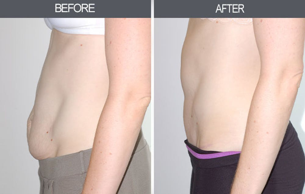 Tummy Tuck Gallery - Patient 4453578 - Image 3