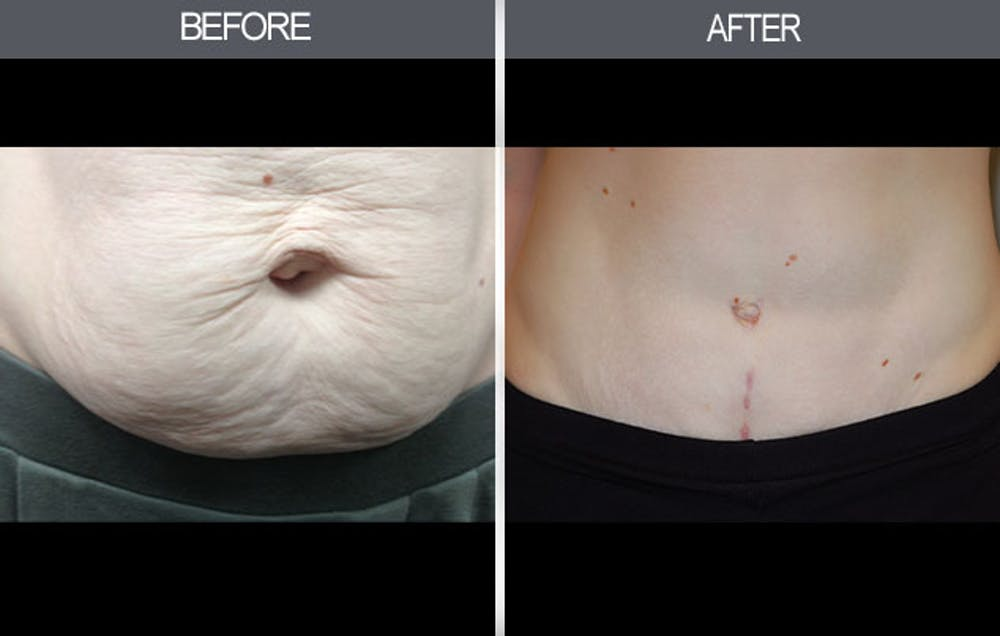 Tummy Tuck Gallery - Patient 4453578 - Image 4