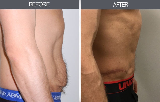 Tummy Tuck Gallery - Patient 4453579 - Image 1