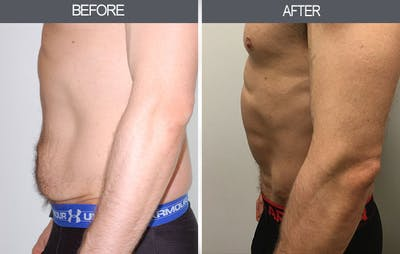 Tummy Tuck Gallery - Patient 4453579 - Image 2