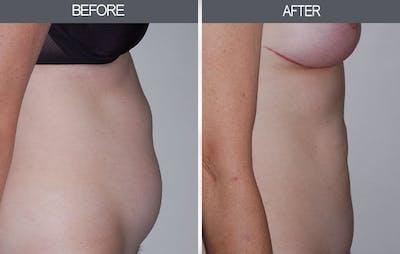 Tummy Tuck Gallery - Patient 4453580 - Image 1