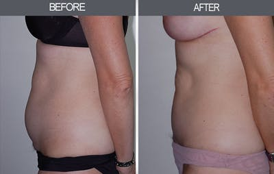 Tummy Tuck Gallery - Patient 4453580 - Image 2