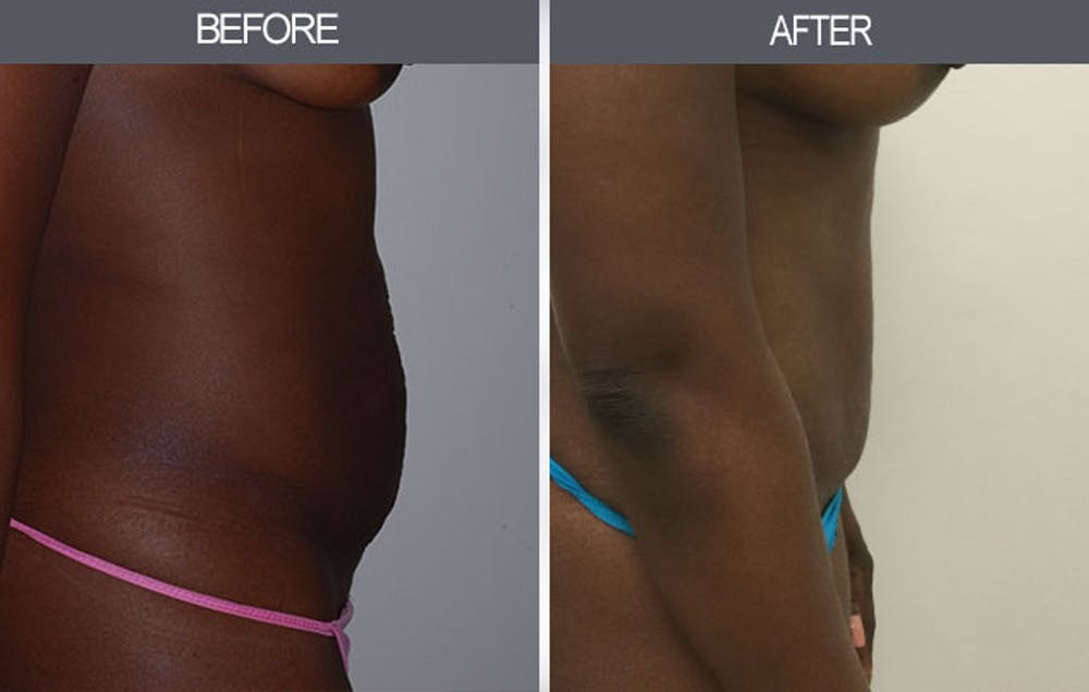 Tummy Tuck Gallery - Patient 4453581 - Image 1