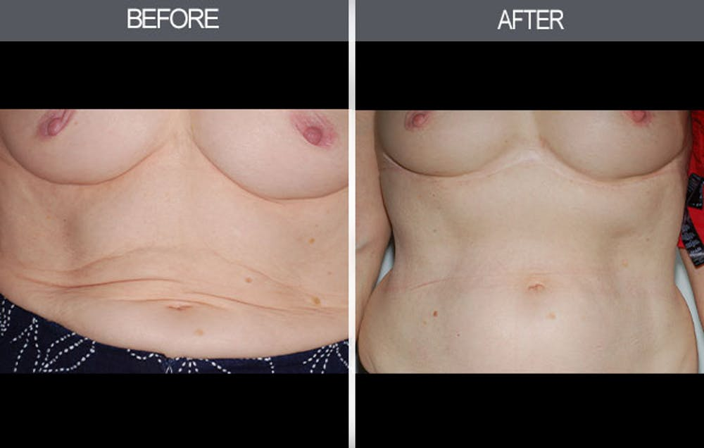 Tummy Tuck Gallery - Patient 4453582 - Image 1