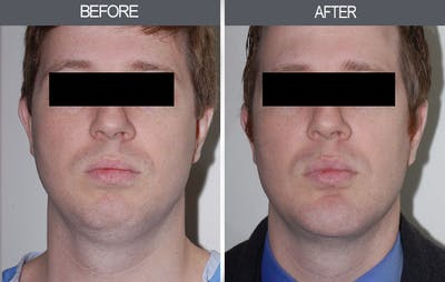 Submental Liposuction Gallery - Patient 4453813 - Image 1
