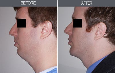 Submental Liposuction Gallery - Patient 4453813 - Image 2