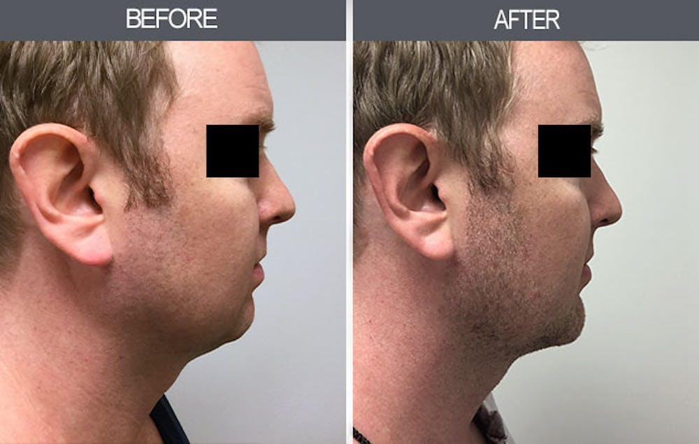 Submental Liposuction Gallery - Patient 4453814 - Image 1
