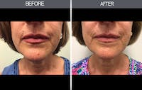 Mole Removal Gallery - Patient 4454437 - Image 1