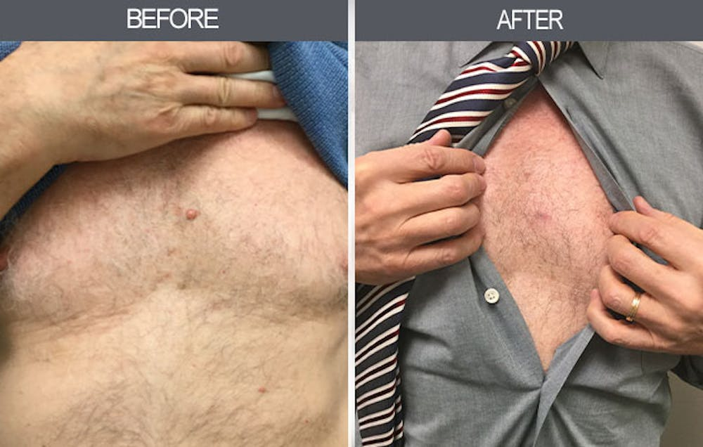 Mole Removal Gallery - Patient 4454439 - Image 1