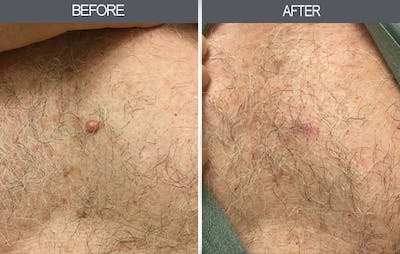 Mole Removal Gallery - Patient 4454439 - Image 2