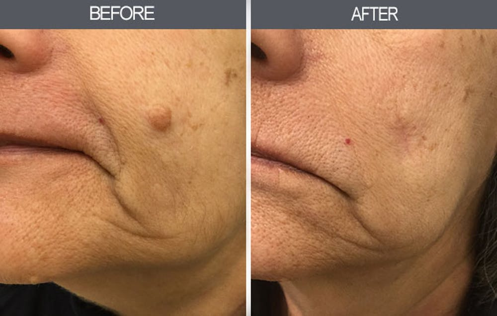 Mole Removal Gallery - Patient 4454442 - Image 1