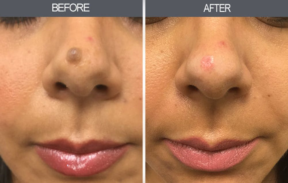 Mole Removal Gallery - Patient 4454443 - Image 1