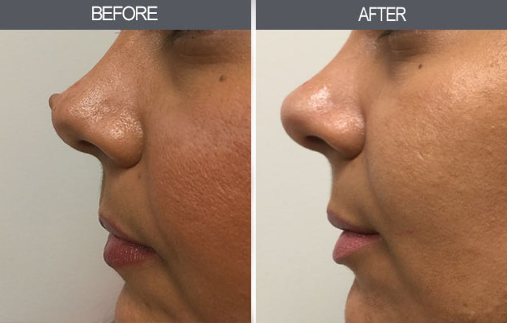 Mole Removal Gallery - Patient 4454443 - Image 2