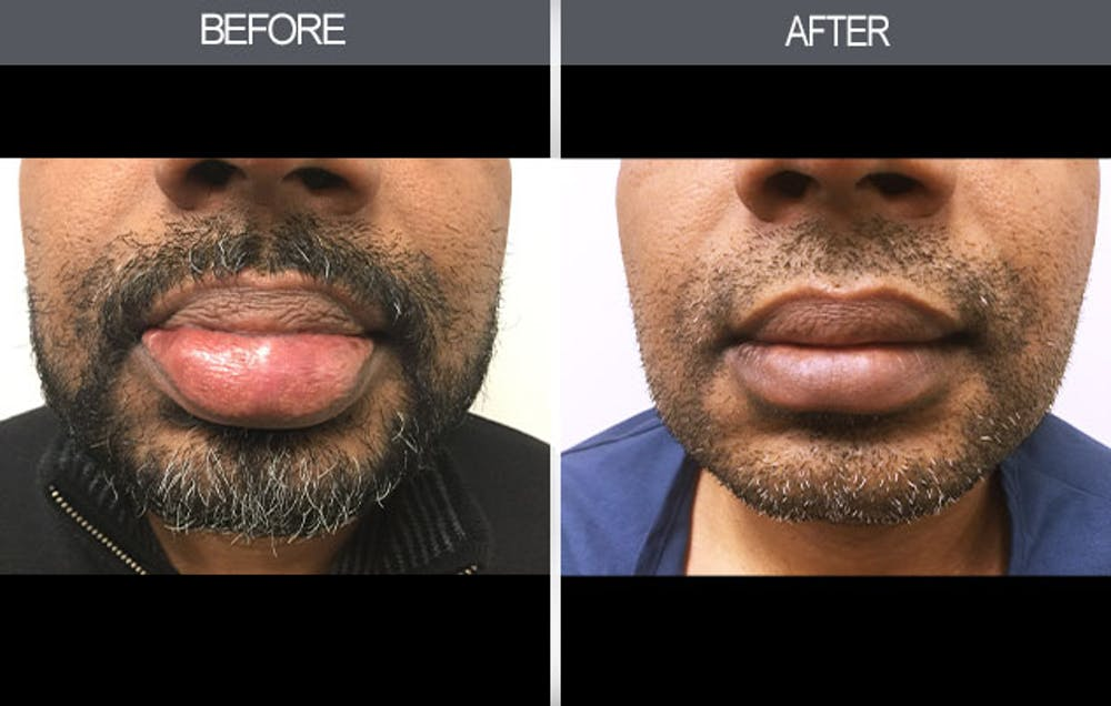 Lip Reduction Gallery - Patient 4455031 - Image 1