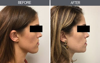Chin Reduction Gallery - Patient 4455276 - Image 1