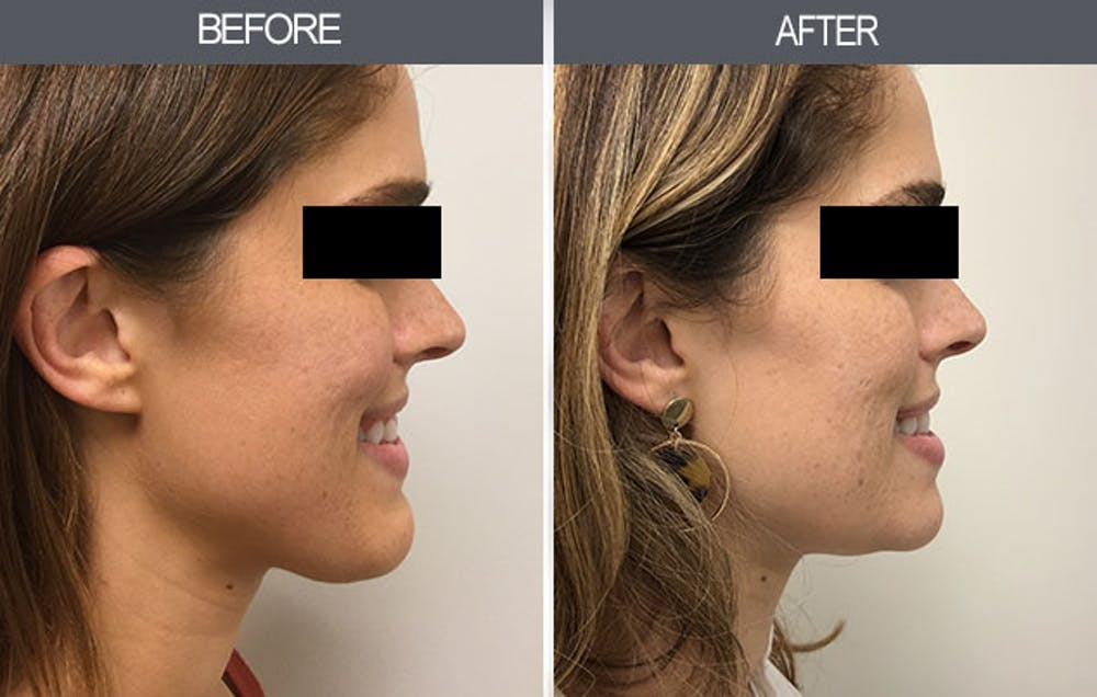 Chin Reduction Gallery - Patient 4455276 - Image 2