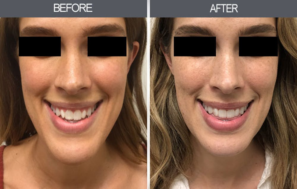 Chin Reduction Gallery - Patient 4455276 - Image 3