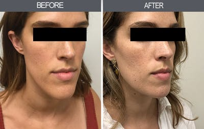 Chin Reduction Gallery - Patient 4455276 - Image 4