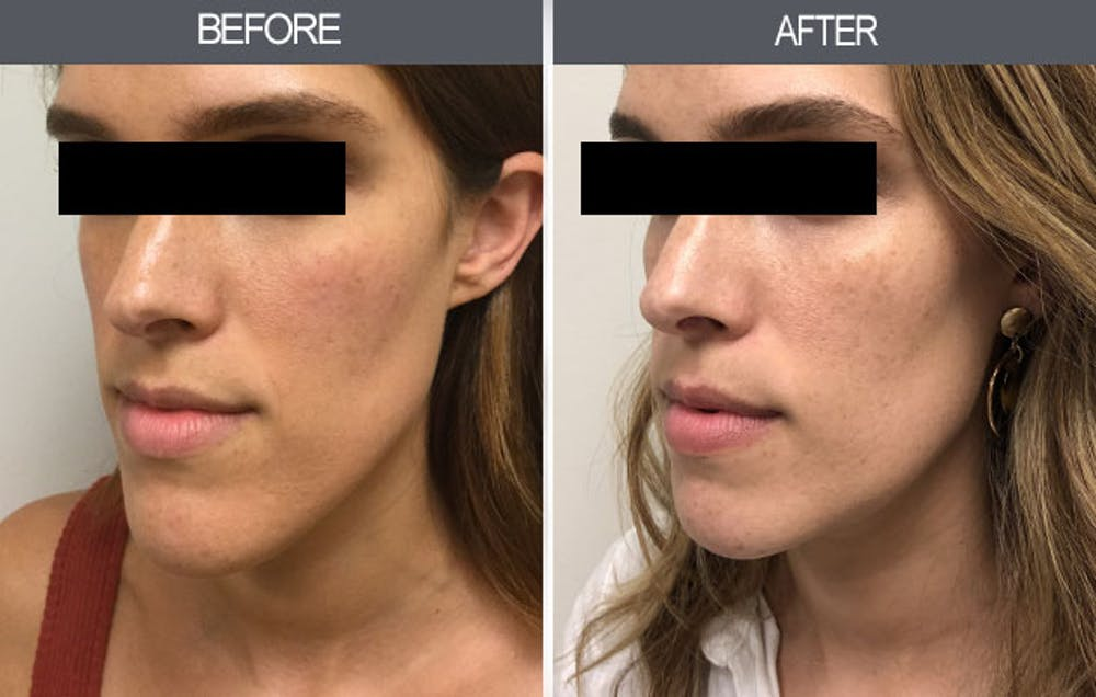 Chin Reduction Gallery - Patient 4455276 - Image 5