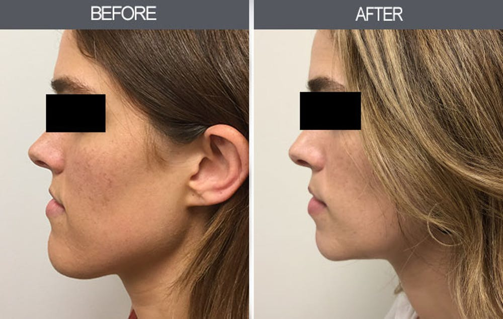 Chin Reduction Gallery - Patient 4455276 - Image 6