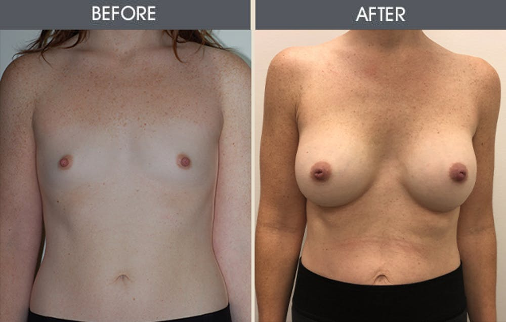Breast Augmentation Gallery - Patient 5890663 - Image 1