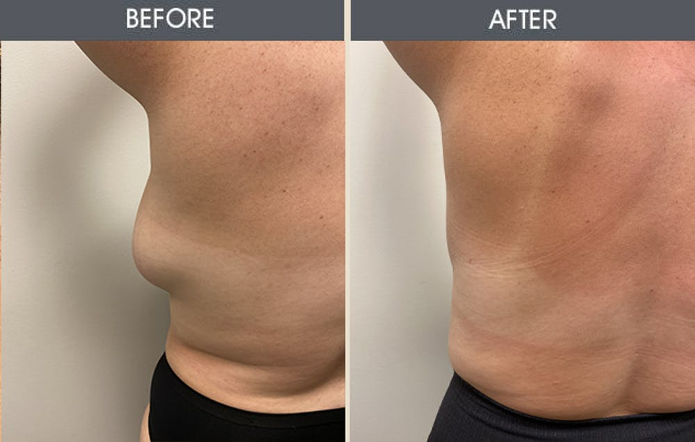 Lipoma Removal Gallery - Patient 5890666 - Image 1